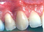 27-Root covered graft-This is the same tooth after a graft successfully covered the root surface and increased the attached tissue