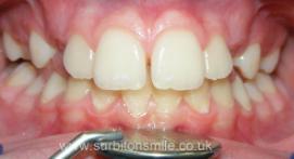 Missing upper teeth