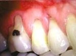 28-This is another example of gum recession