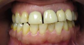 yellowed teeth