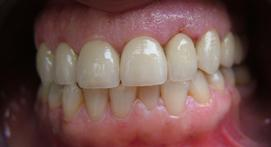 yellowed teeth after whitening