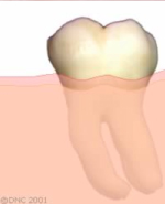 30-Clinical crown-lengthening - Example of a healthy Tooth