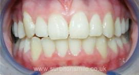 Tooth gaps closed and gums receded with orthodontic treatment