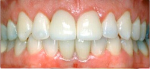 An aesthetic crown lengthening was performed and crowns were placed on the two central incisors