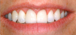 A dramatic improvement of the patient's smile