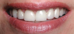 Aesthetic crown lengthening, crowns and veneers were placed on eight top teeth