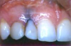 This patient was unhappy with the contour of his gums around the missing tooth. The blue coloration is a tattoo created bymetal particles from a failed root canal