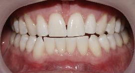Front teeth after whitening