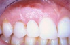The bluish gum tissue was removed and the ridge was augmented with a graft, giving a more pleasant and natural contour