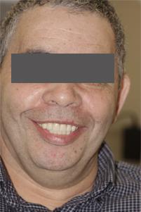 Man with telescopic dentures