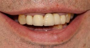 Telescopic denture treatment fig 1