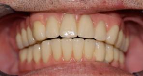 Telescopic denture treatment fig 5