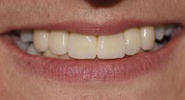Whitened crowns