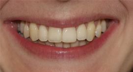 Incisors evened out using Inman aligners