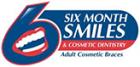 6-month Smiles braces
