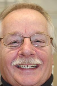 Man with Implant Retained Denture