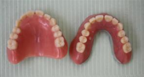 Implant Retained Denture fig 5