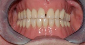 Implant Retained Denture fig 6