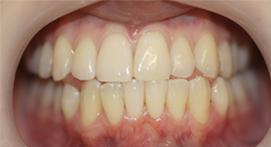 Teeth straightened with Inman Aligners