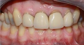 Crowns with dental fixtures