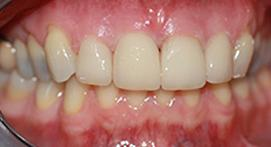 Crowns with dental fixtures properly adjusted