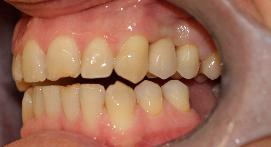 Missing tooth filled in by dental implant