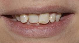 Teeth without Inman Aligners