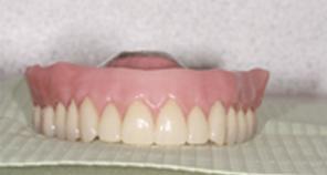 overbite of new dental implant