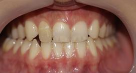 Teeth before Tooth Bonding proceedure