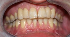 Patient after Dental Implants