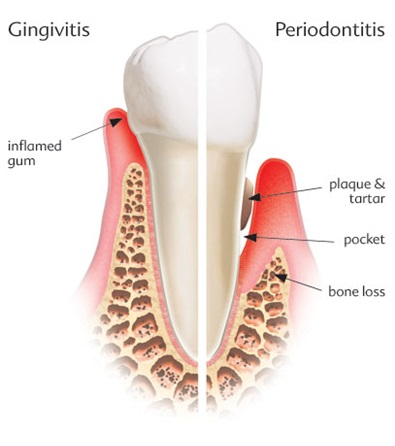 Periodontal Disease Examination