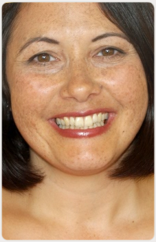 Wendy Piercy Hygenist Surbiton Smile Centre
