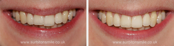 Incisor crown cap (before and after)
