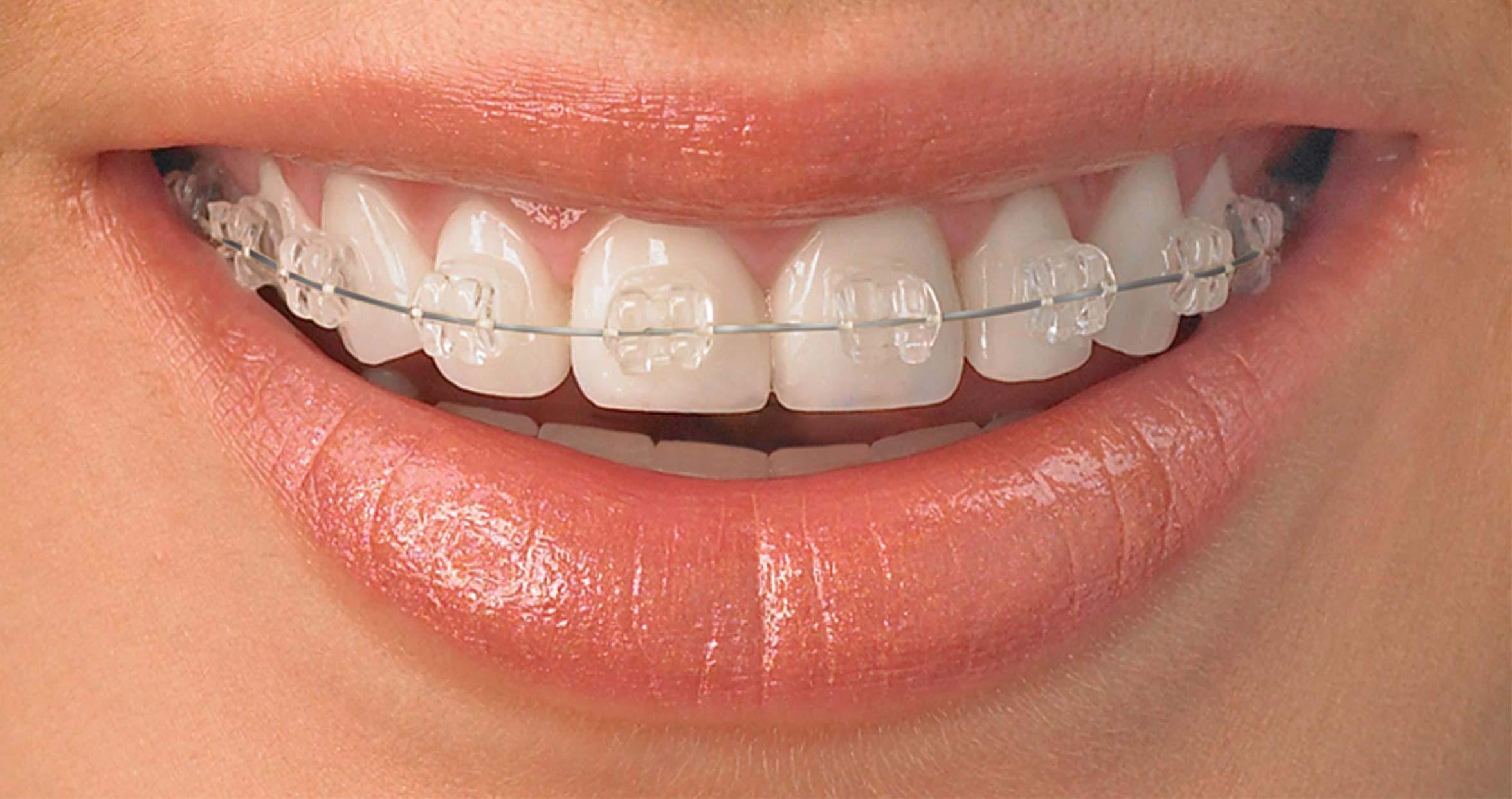 ceramic braces, supplied by Surbiton Smile Dental Centre, Surbiton, Surrey UK