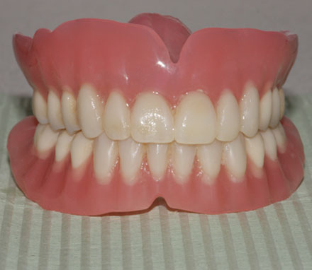 conventional dentures