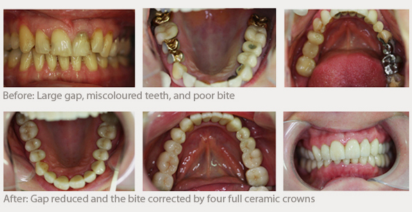 Examples before and after, large gap, miscoloured teeth and poor bite