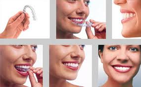 Invisalign Braces supplied by surbiton Smile Dental Centre - Surbiton - London UK