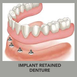 implant retained dentures surrey