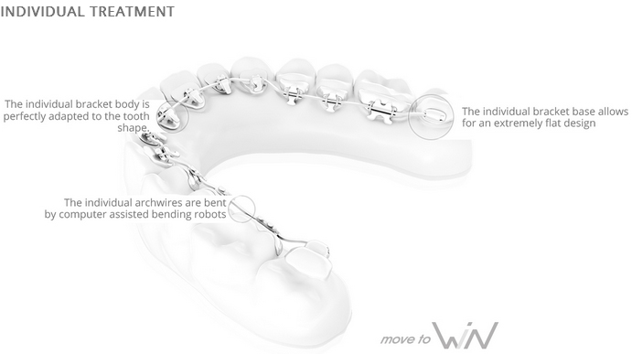individual treatment, lingual braces - smile surbiton