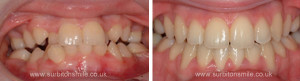 Tooth alignment correction