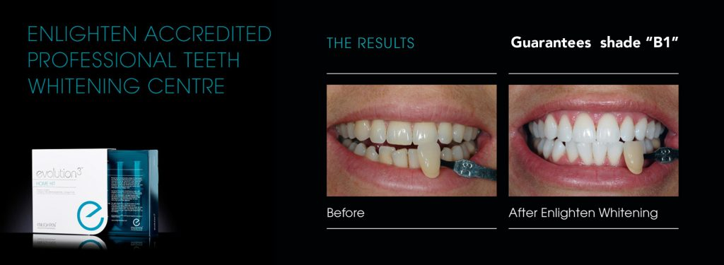 teeth-whitening-best-result-whitest-teeth