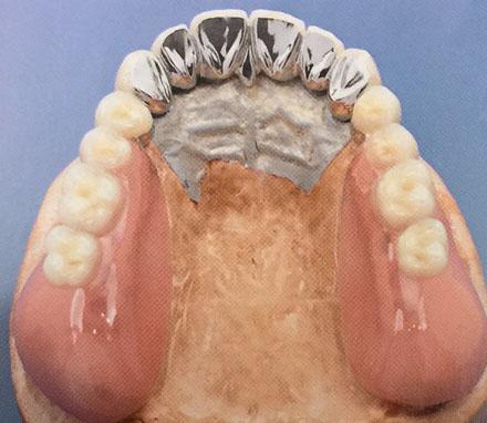 telescopic denture 2