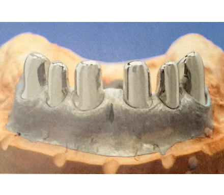 telescopic denture 3