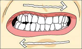 Bruxism Clinching Grounding
