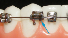 Do you have loose or broken braces? Get them fixed with us