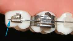 Discomfort with long arch wires in your braces? Surbiton can help