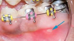 03-Sores or ulcerations inside the mouth