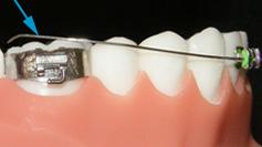 Metal ties poking gums