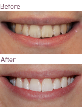 Bleaching Treatment at Surbiton Smile Centre in Surbiton, Surrey
