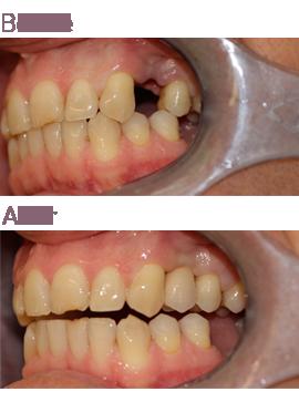 Implant Treatment at Surbiton Smile Centre in Surbiton, Surrey
